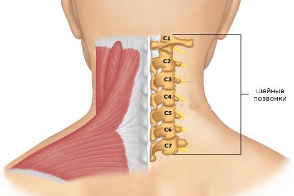 Шейный остеохондроз симптомы и лечение фото