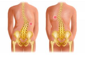 Симптомы и ощущения при грудном остеохондрозе