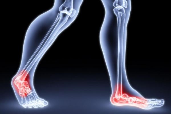 Ноги, голеностопные суставы