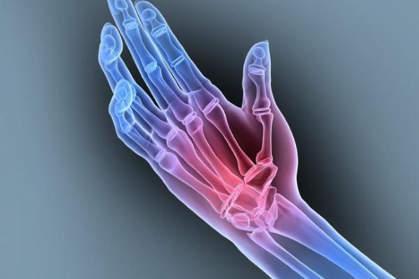 Причины развития артрита лучезапястного сустава