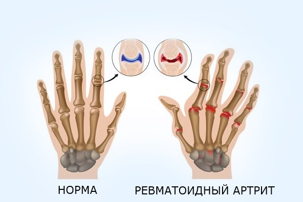 Артрит кистей рук лечение - 5 основных способов