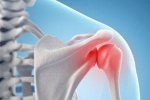средство от артрита плечевого сустава