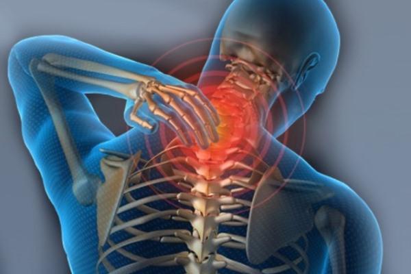 Основные симптомы артрита шейного отдела позвоночника
