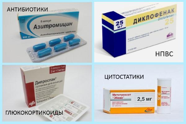 Препараты для лечения хламидийного артрита