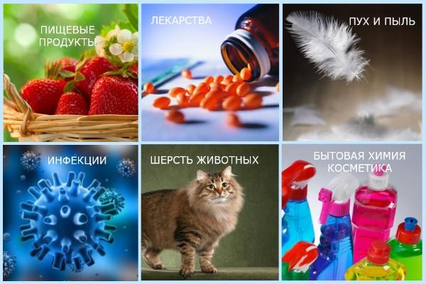 Причины аллергического артрита