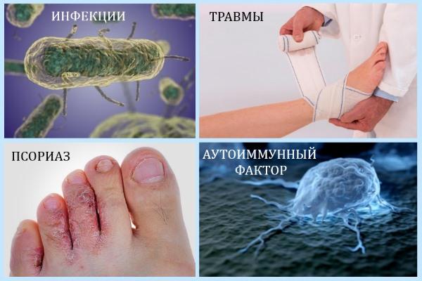 Причины артрита стоп
