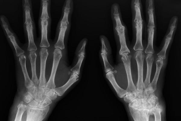 Рентген кисти при ревматоидном артрите