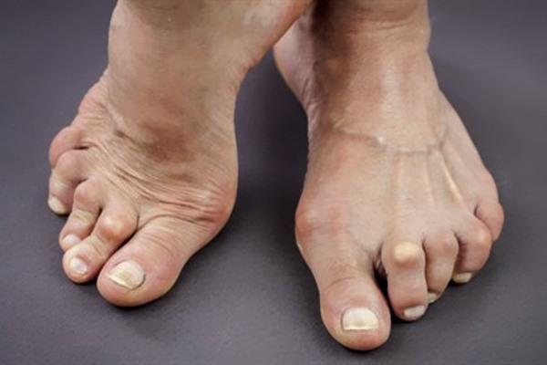 Симптомы артрита пальцев ног, искривление суставов
