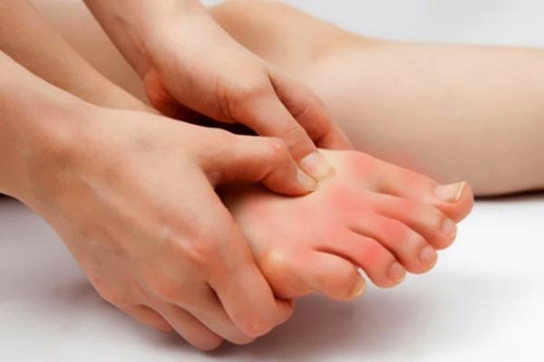 Симптомы артрита стоп, боль в ступне