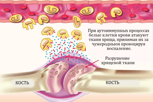 Воспаление хрящевой ткани сустава
