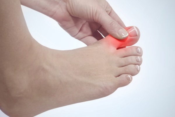 Какое требуется лечение при ризартрозе (артрозе большого пальца руки)
