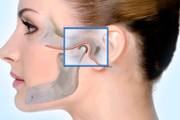 Артроз челюстно-лицевого сустава