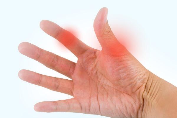Бурсит пальца руки