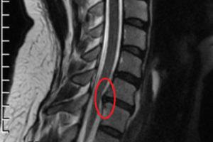грыжа диска рентген