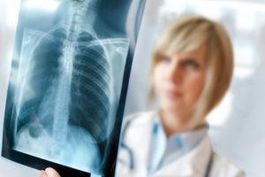доктор смотрит на рентген снимок