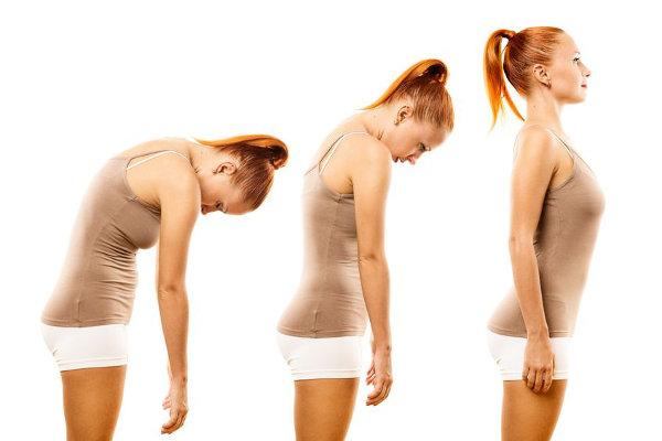 кифоз упражнения