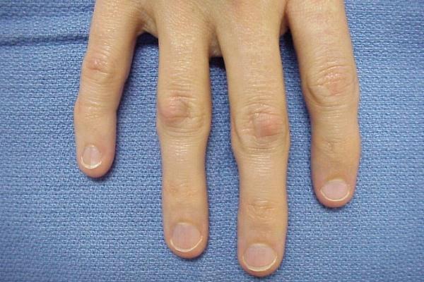 Деформация суставов на пальцах