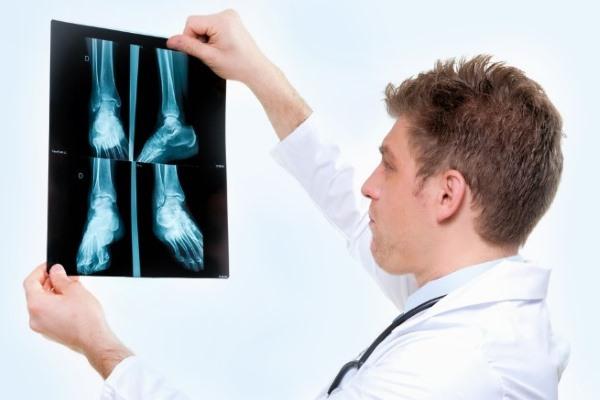 Доктор рассматривает рентгеновский снимок стопы
