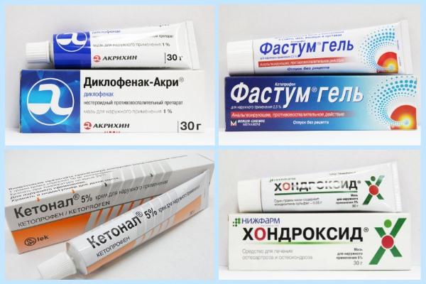 Мази при артрите