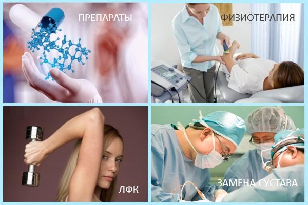 Методы лечения артрита локтя