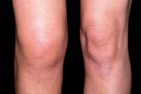 Отек колена при артрозе