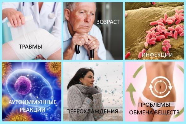 Частые причины артрита коленного сустава