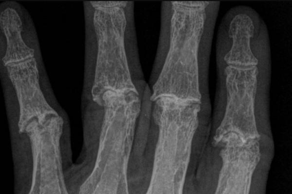 Признаки ревматоидного артрита на рентгене