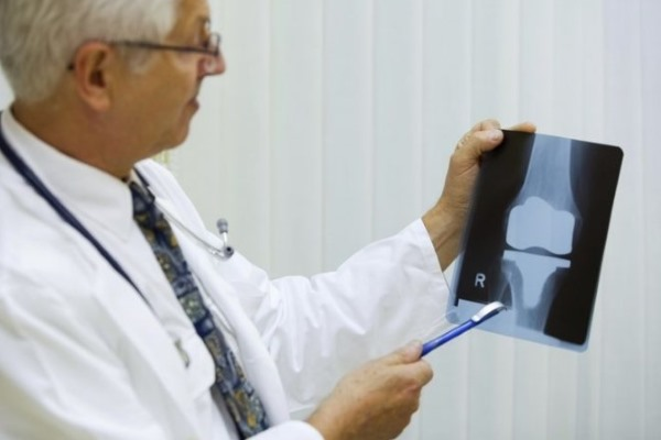 Врач смотрит рентгеновский снимок