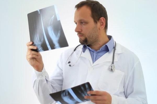 Врач рассматривает рентгеновский снимок